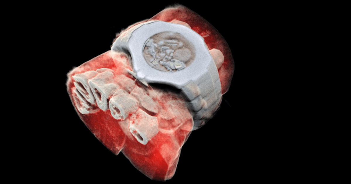 CERN chip enables first 3D color X-ray images of the human body