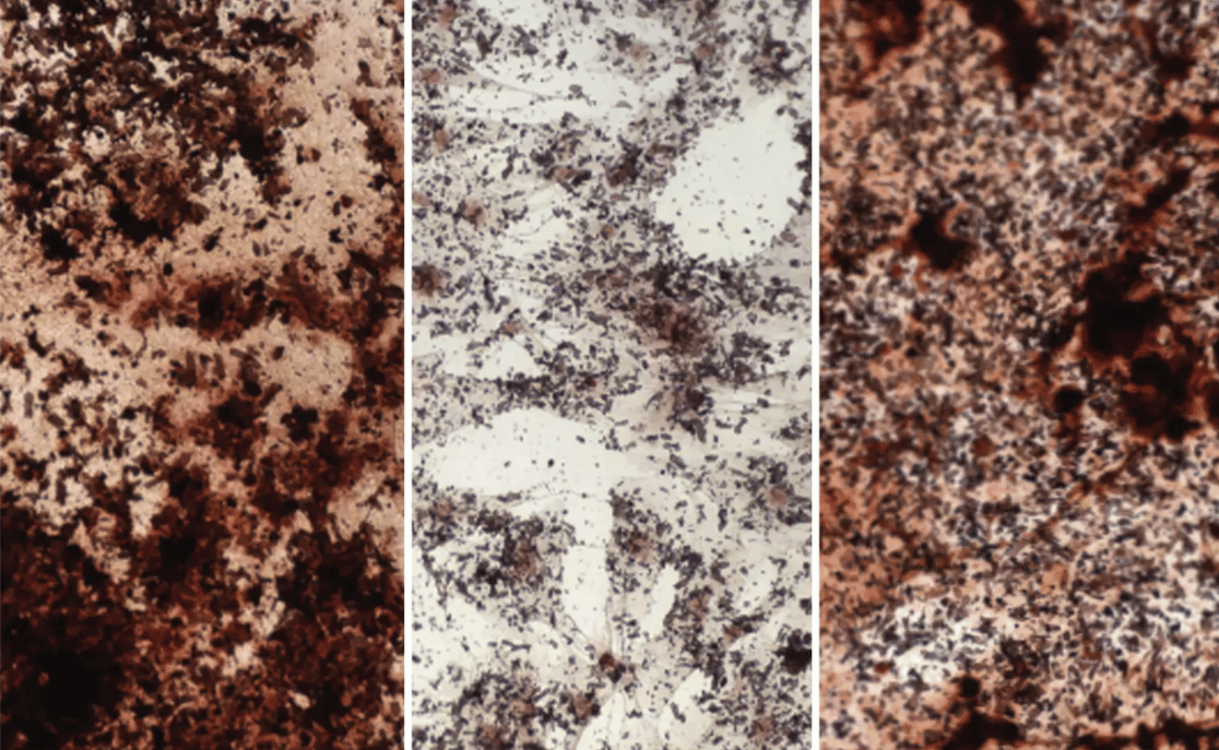 Young stem cells (left) produce more material (dark brown) for bone than old stem cells (center), and a new study shows how they can be rejuvenated by adding sodium acetate (right)