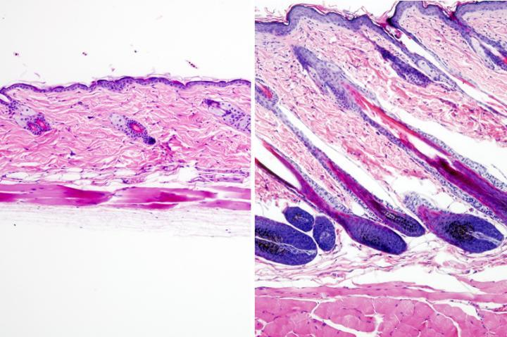 Untreated mouse skin on the left versus skin that was treated with the drug UK5099 on the right