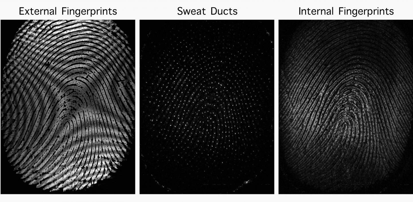 Images acquired using the new technology, which also images sweat ducts