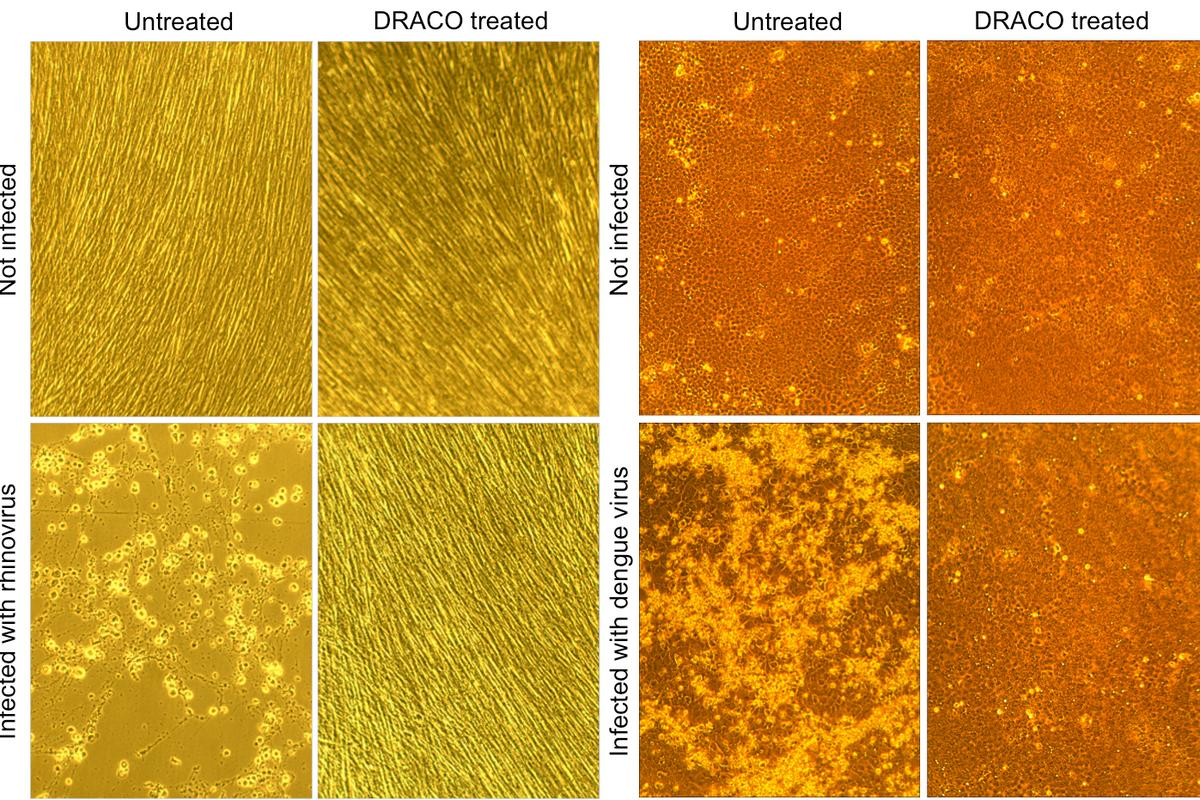 In this set of four photos, dengue hemorrhagic fever virus kills untreated monkey cells (lower left), whereas DRACO has no toxicity in uninfected cells (upper right) and cures an infected cell population (lower right) - (Image: MIT)