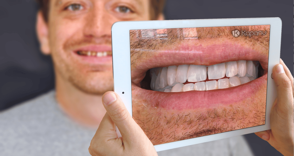 Kapanu actually showed off its augmented realitysoftware at the International Dental Show in Germany earlier this year