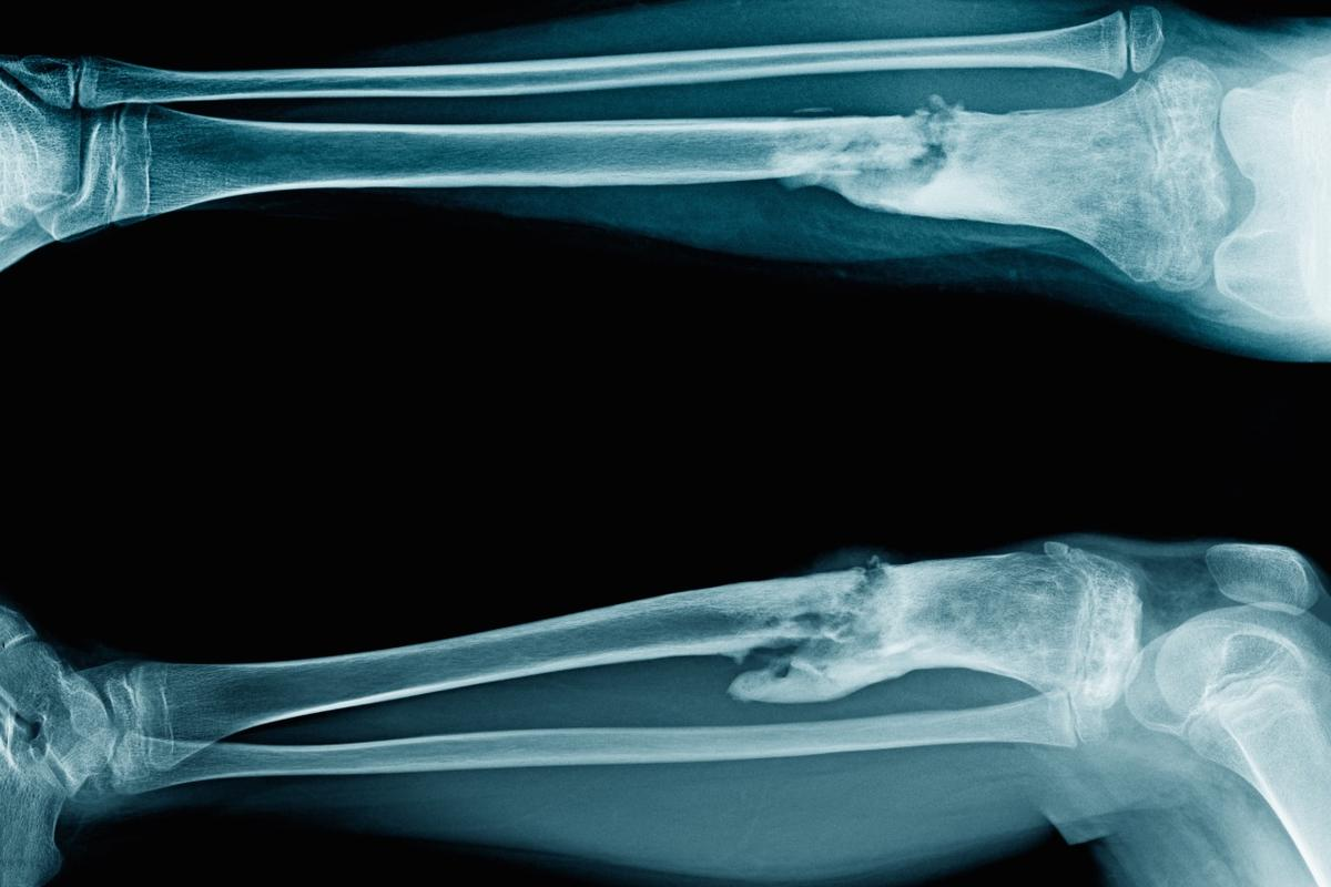 An X-ray showing osteomyelitis in a young person's tibia