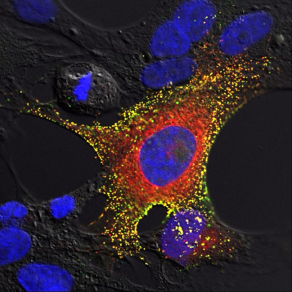 An image of bat cells infected with the Hendra virus