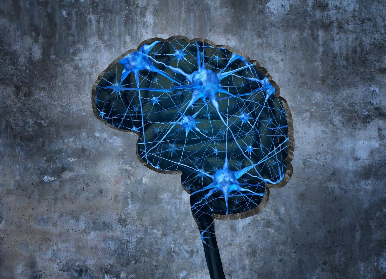 Promising research has reversed dementia-related brain damagein mice using an old asthma drug