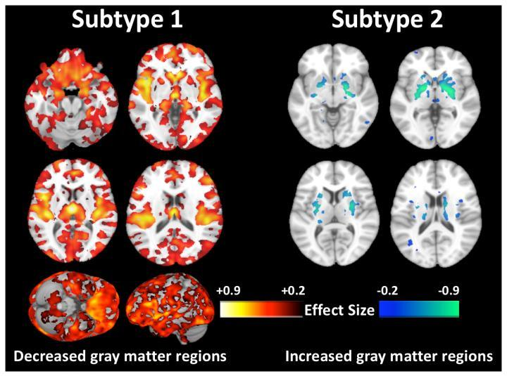 Sixty percent of the subjects were found to show decreased gray matter as predicted but a startling 40 percent of subjects displayed virtually normal brains defying common neuroanatomical notions of schizophrenia
