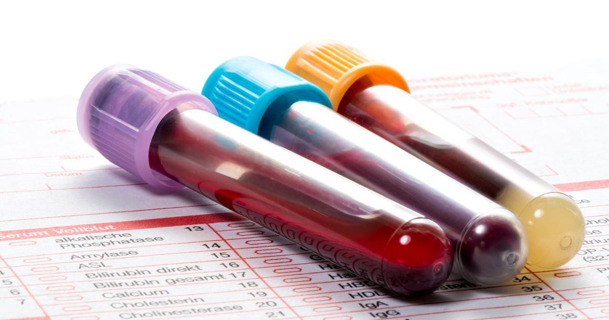 Universal cancer blood test detects and locates 50 types of tumors