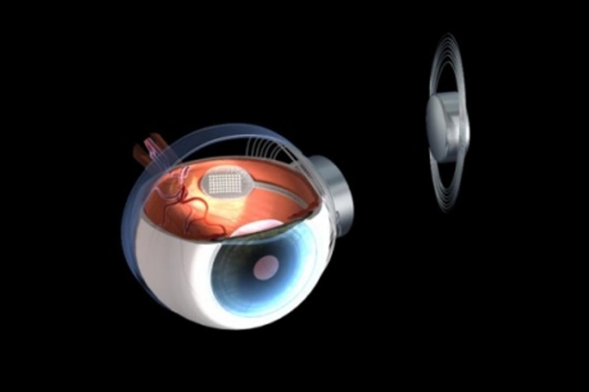 A clinical trial of the Argus II Retinal Prosthesis involving 30 patients has produced encouraging results