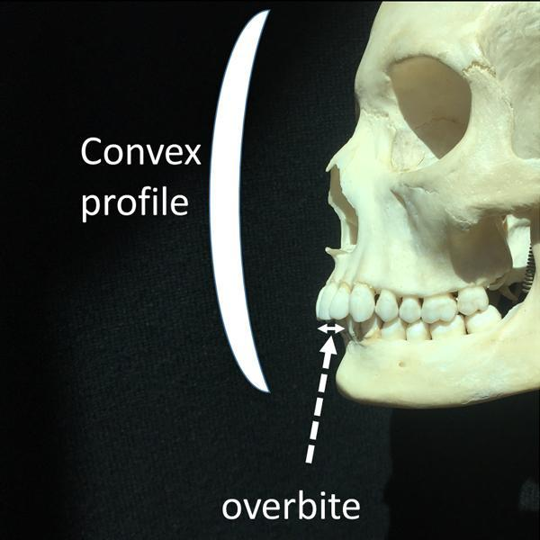 Slender lower jaws are also associated with overbites