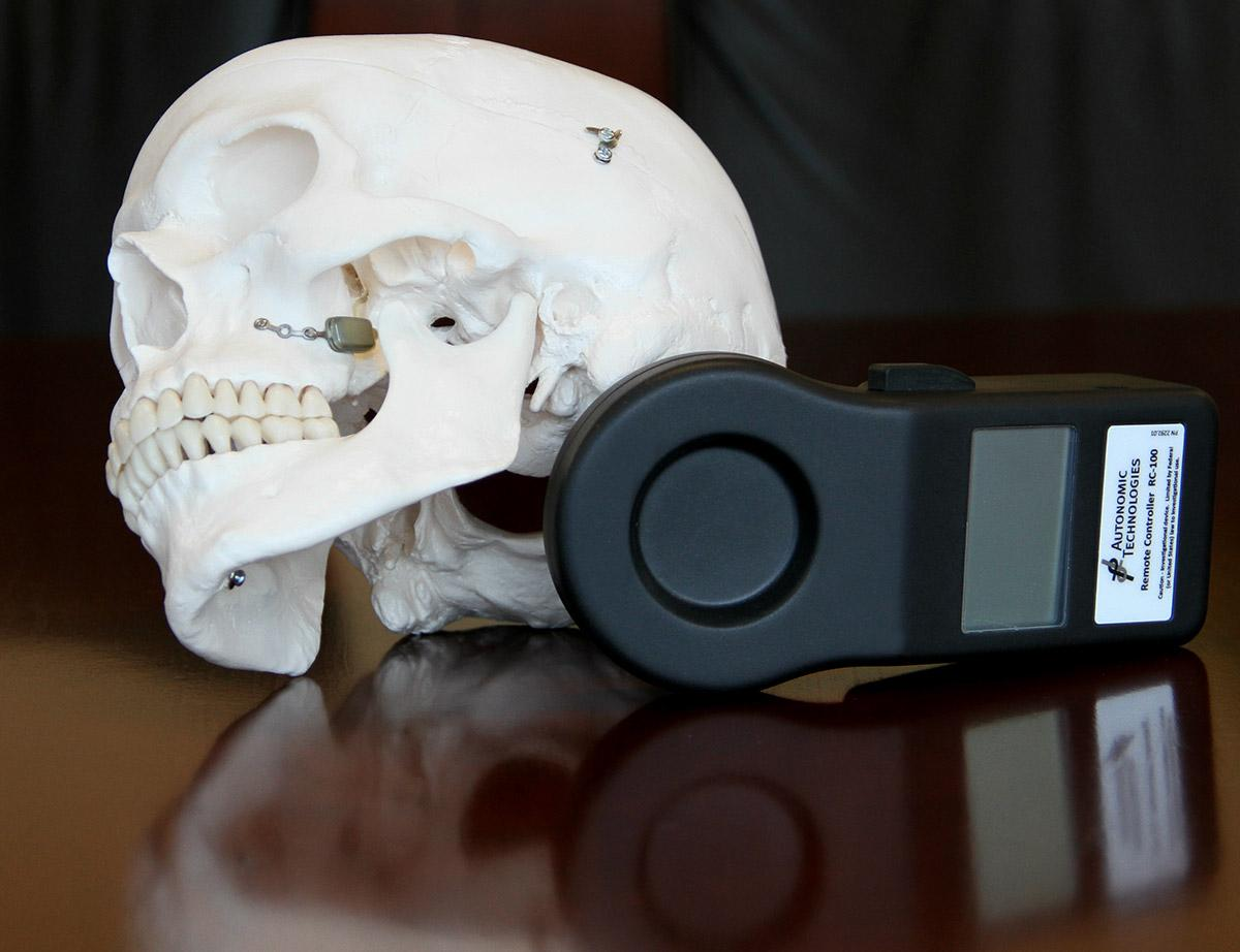 The ATI Neurostimulator (on skull, at left) and its handheld remote control (Photo: The Ohio State University)