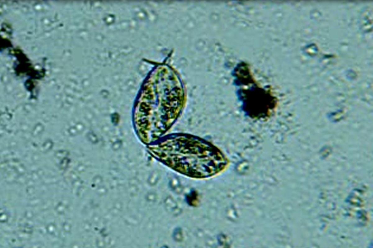 A pair of Paramecium aurelia swim through a water sample