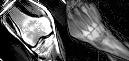 MRI images of knee and wrist joints taken using the TRASE RF phase gradient method (Photo: University of Saskatchewan)
