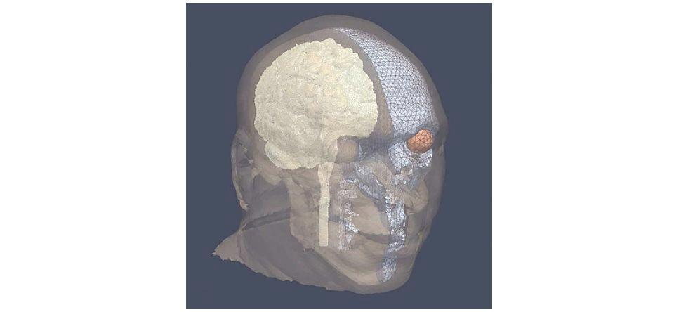 A newly-developed computer model indicates that face shields could protect soldiers from traumatic brain injuries caused by explosions