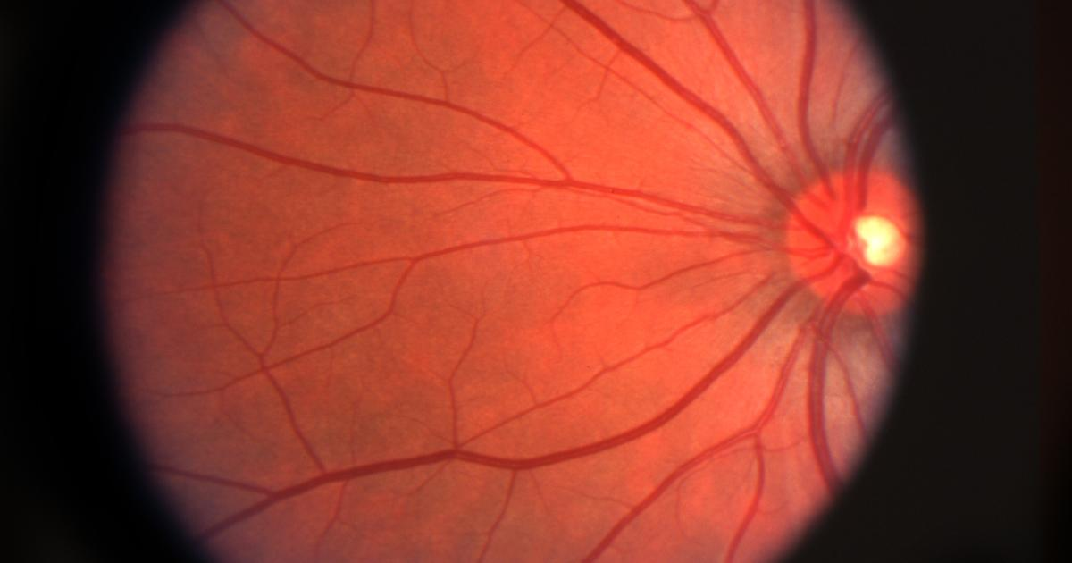 Biohybrid artificial retina aims to restore vision using living cells