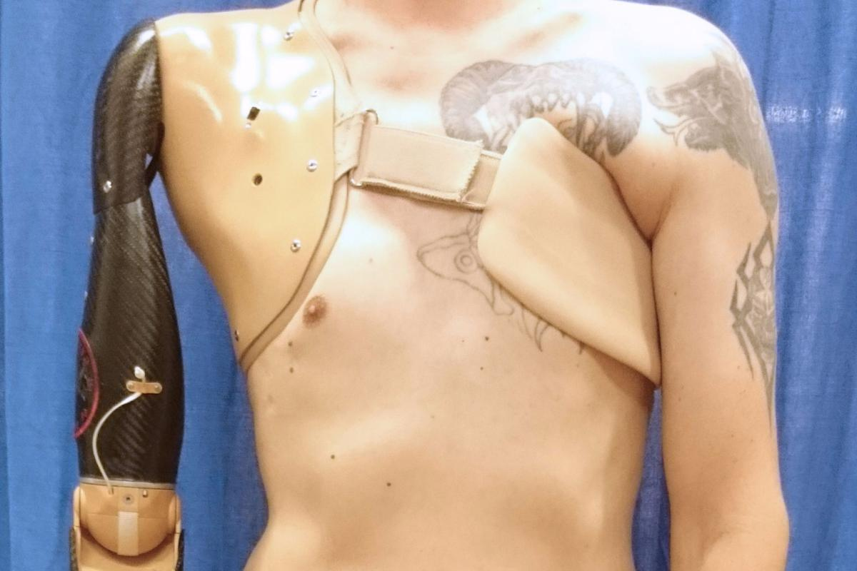 Thanks to a new signal-detecting sensor, amputees could have greater control over their prosthesesin future