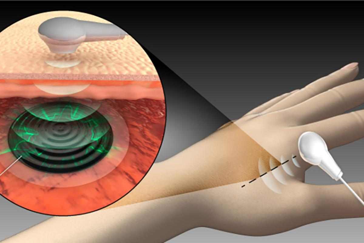 A new technology developed at King Abdullah University of Science and Technology could enable for implanted medical devices to be powered wirelessly with ultrasound