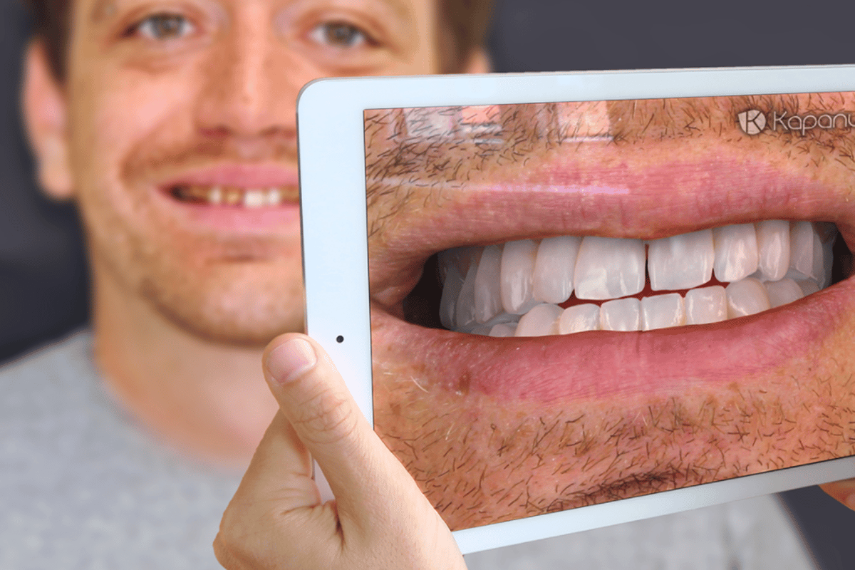 Kapanu actually showed off its augmented reality software at the International Dental Show in Germany earlier this year