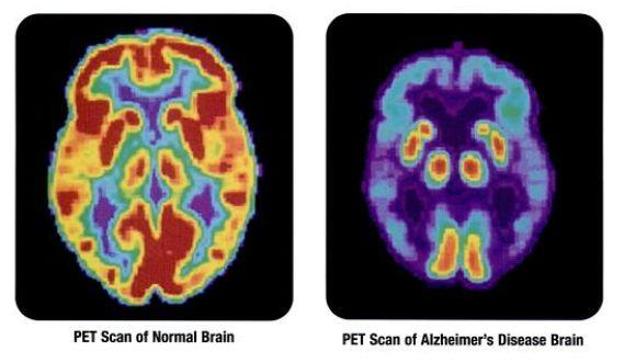 Alzheimer's disease gradually destroys the brain and its function (Photo: US National Institutes of Health)