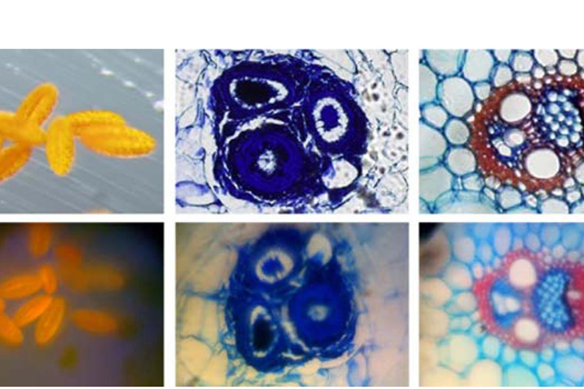 Stained samples of pollen (left images) and plant stems (right two images). Top row: commercial microscope. Bottom row: cell phone microscope (Image: Z. J. Smith, K. Chu, A. R. Espenson, M. Rahimzadeh, A. Gryshuk, M. Molinaro, D. M. Dwyre, S. Lane, D. Matthews, S. Wachsmann-Hogiu)