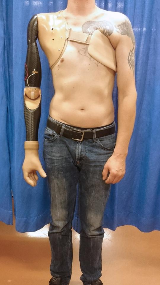 Instead of relying on twitches from damaged muscles, this robotic arm is controlled by the user's thoughts