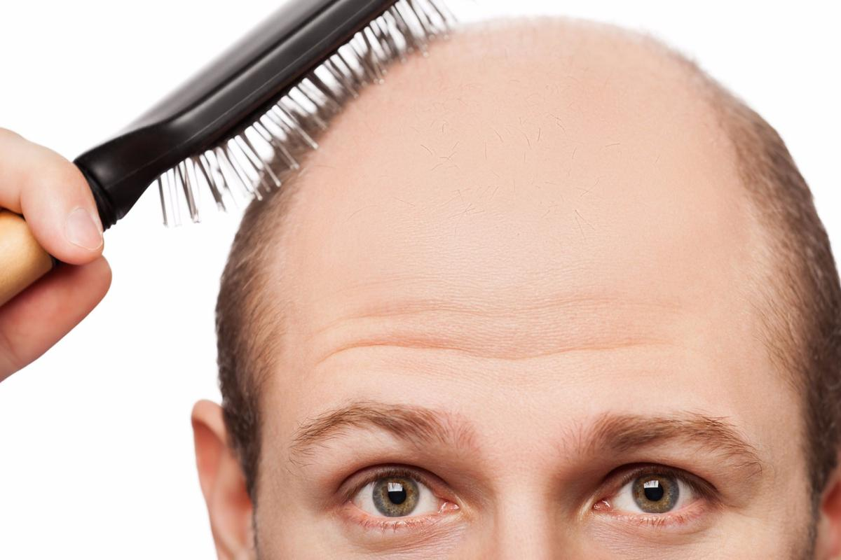 A small study is claiming premature graying and hair loss could signal an increased risk of heart disease