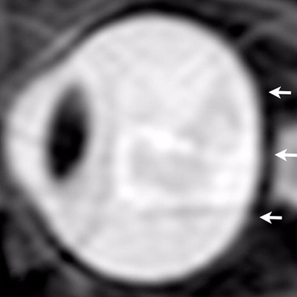 From a study of astronauts in 2012, sagittal oblique T2-weighted MR image of left eye before long-term flight.