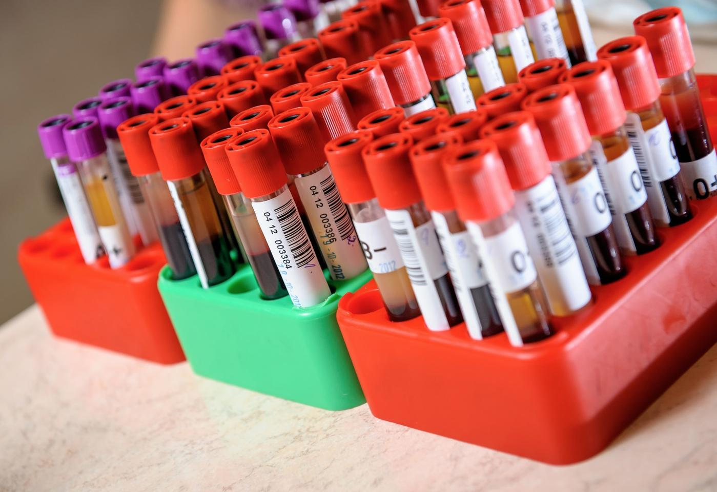 A blood test for Alzheimer's could prove invaluable in detecting the disease early on