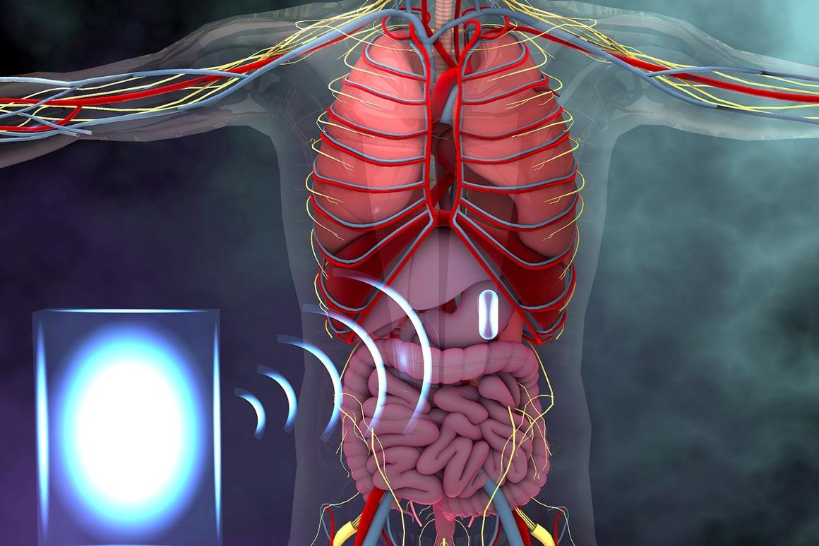 An illustration showing how an electronic device in the stomach could be powered wirelessly