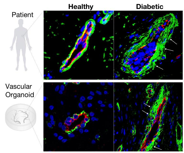 When exposed to hyperglycemiathe lab-grown blood vessels (in red)show the same enlarged membrane (in green) as live, diabetic patients