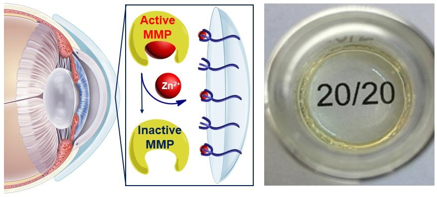 A diagram of the MMP-neutralizing contact lens