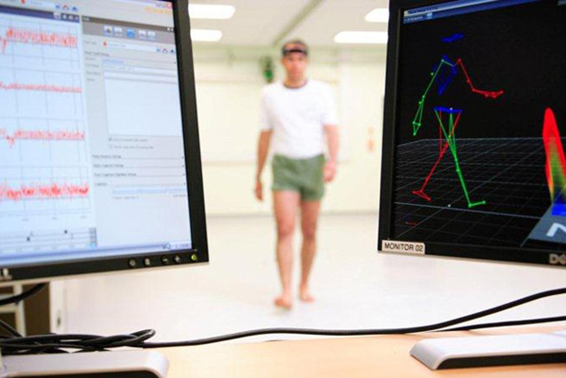 A new study suggests a person's gait can be used to distinguish between Alzheimer's dementia and Lewy body dementia