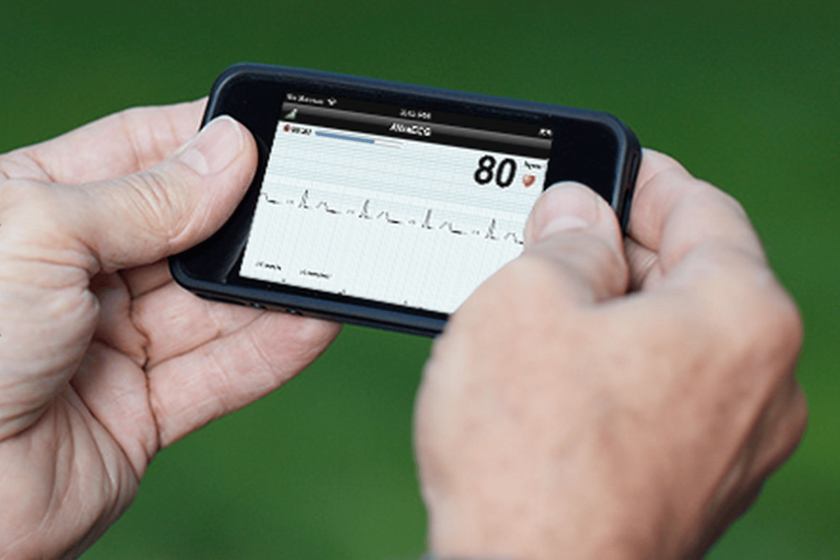 The AliveCor Heart Monitor attaches to the back of an iPhone 4 or 4S