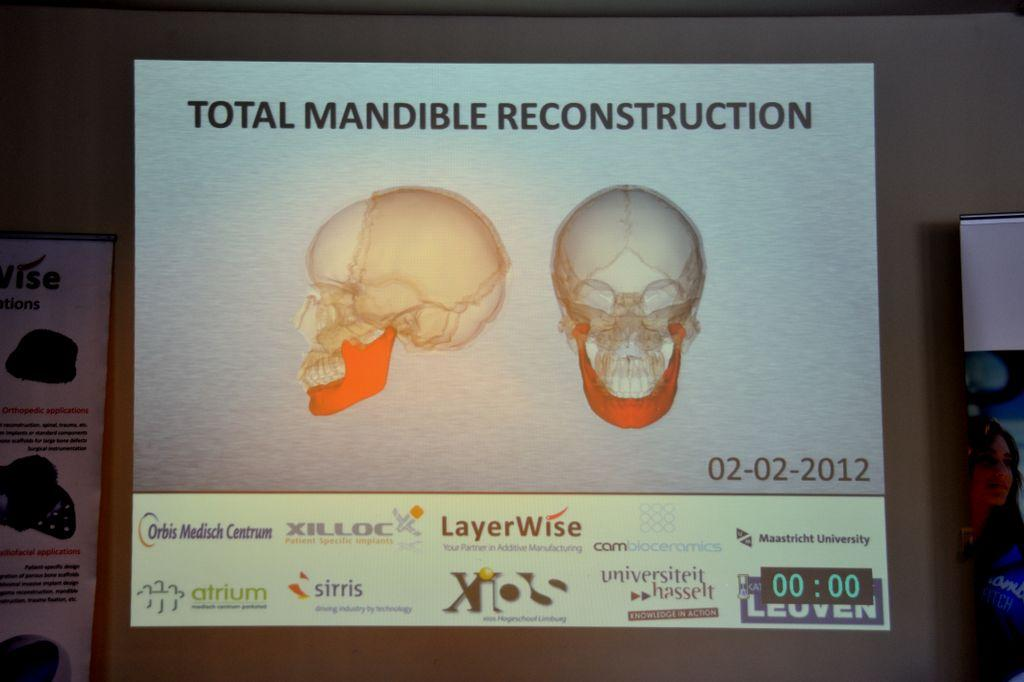 Slide showing the lower mandible implant in place