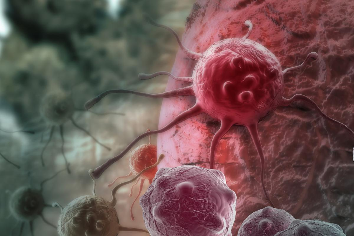 Research fromthe Walter and Eliza Hall Institute of Medical Researchcould helpCAR-T cell therapy be adapted to treat solid tumors