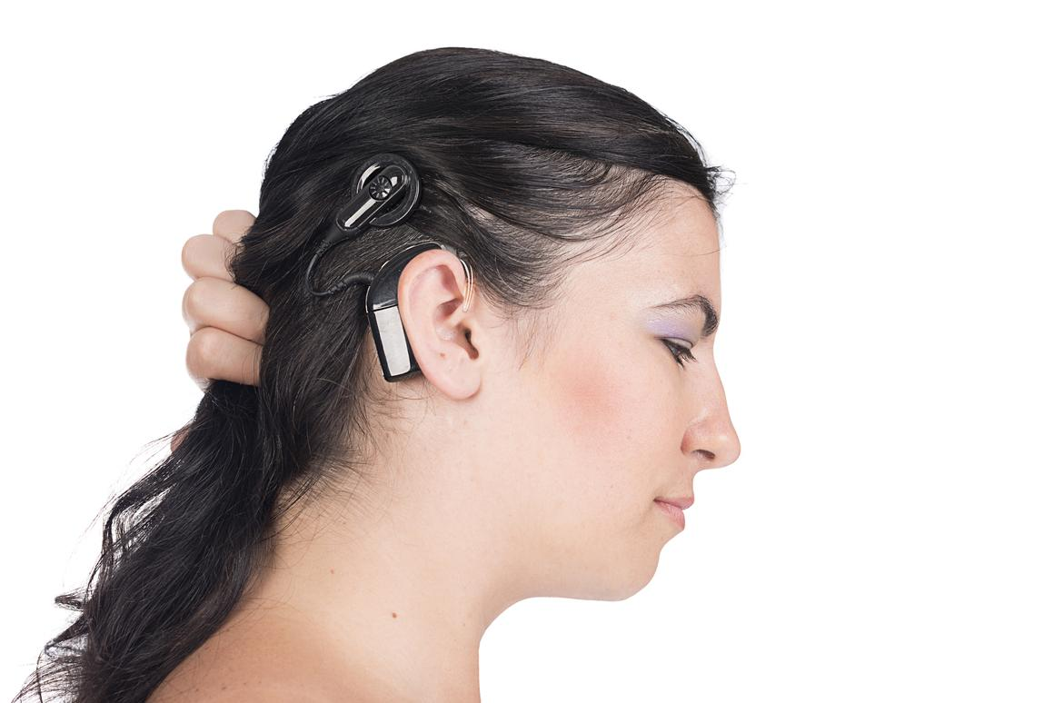 The hard-to-miss external components of a traditional cochlear implant (Photo: Shutterstock)