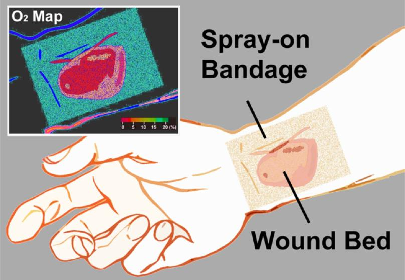 The bandage indicates oxygen concentrations across the wound site (Image: Li/Wellman Center for Photomedicine)