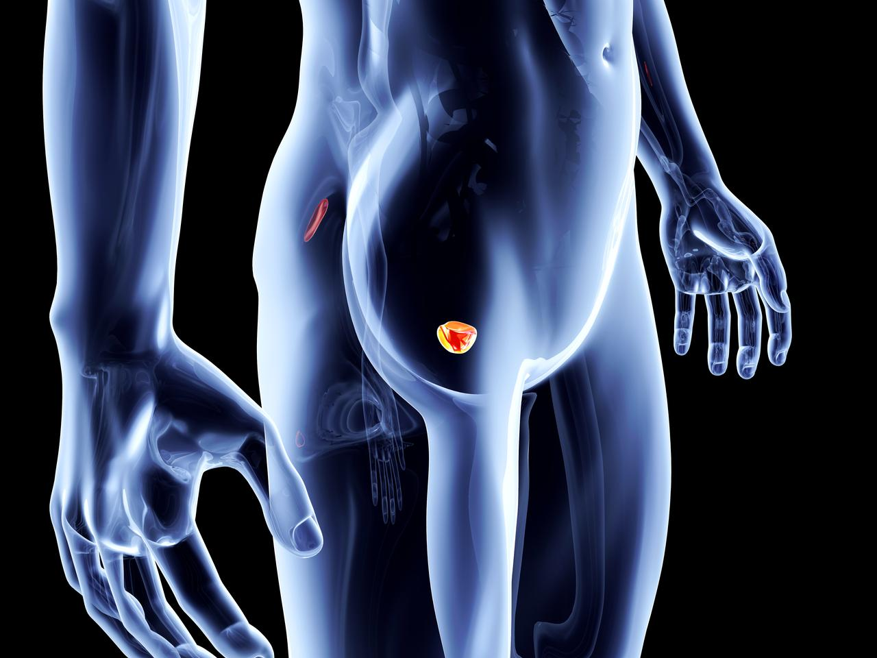 A new urine test that patients can use at home has the ability to detect the aggressiveness of prostate cancers