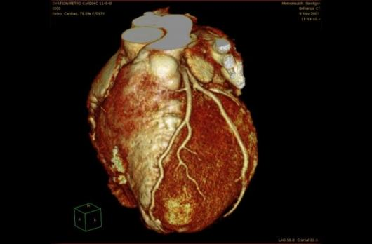 Heart image from Brilliance iCT scanner.
