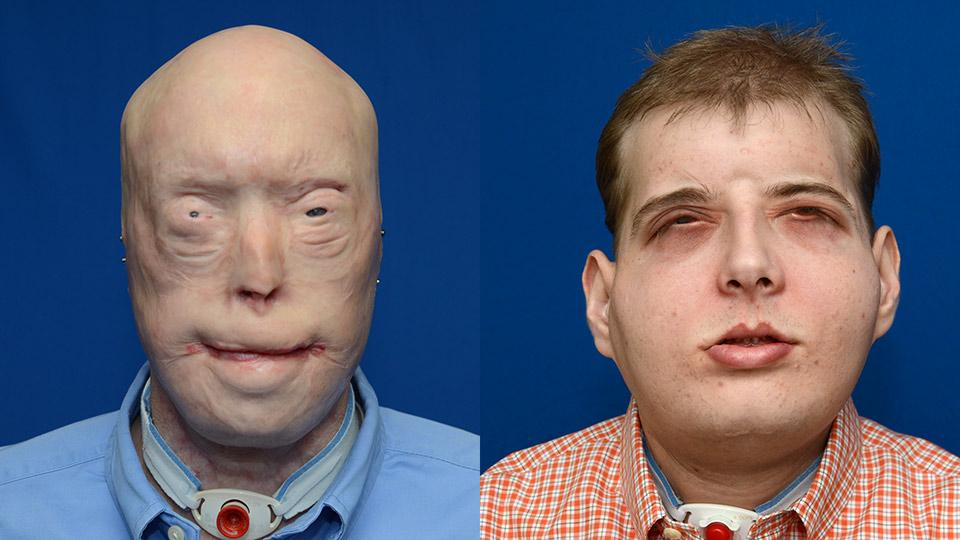 Surgeons at New York University's (NYU) Langone Medical Center have replaced the entire face of a patient in the what is claimed to be the most extensive face transplant ever carried out