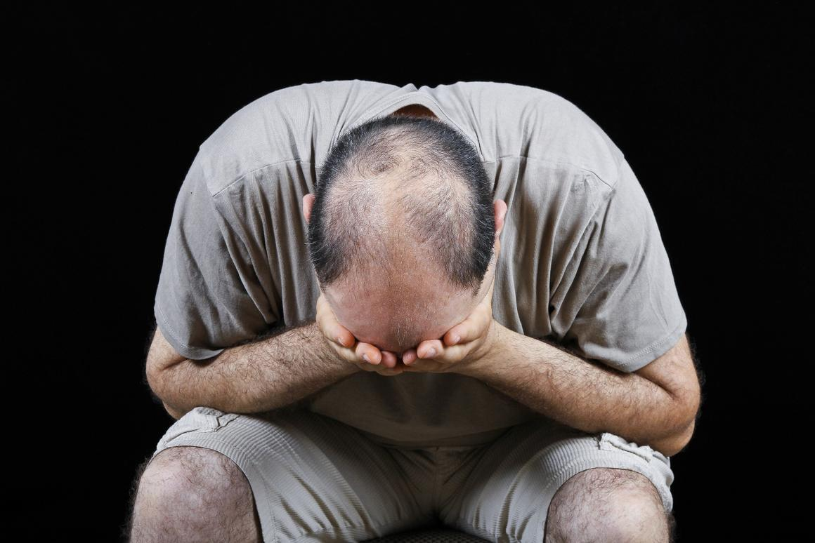 Popular hair-loss drug Propecia could be linked to long-term
