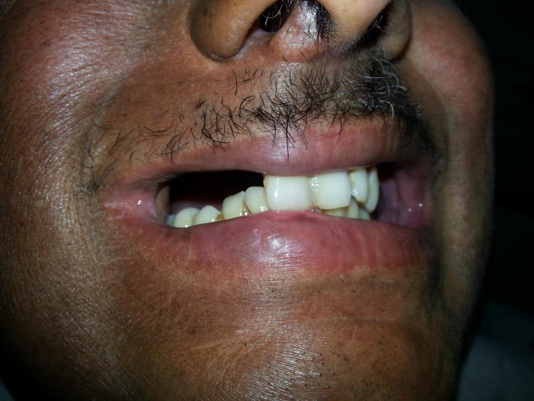 Affecting his eating, speech and appearance, the patient sought a prosthesis but dentists were reluctant to treat him