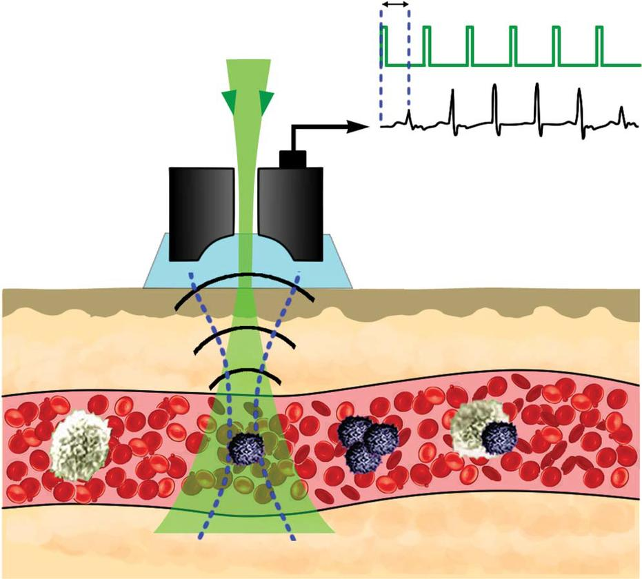 The Cytophone's laser pulses (in green) moving through the ultrasound transducer (black) and into the blood vessel, identifying a melanoma circulating tumor cell
