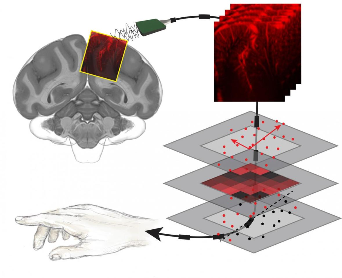 The neural activity shown in those brain images was decoded with a machine learning algorithm to correspond with movements. This process was shown to accurately predict movements even before they happened.