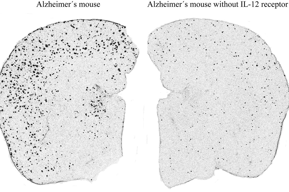 Plaque deposits in the brain tissue of an untreated mouse (left), and one treated in the study