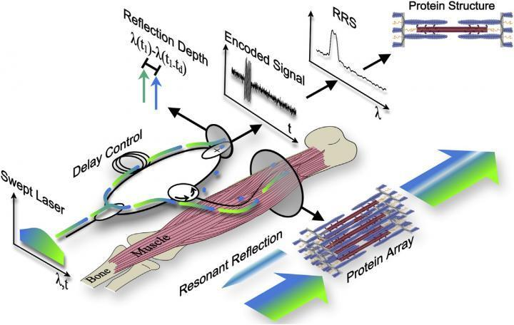 The fiber optic sarcomere length profiler is a minimally invasive alternative to a biopsy, scanning the muscle with a sweeping laser lightand studying the returning signals to calculate the length of sarcomeres
