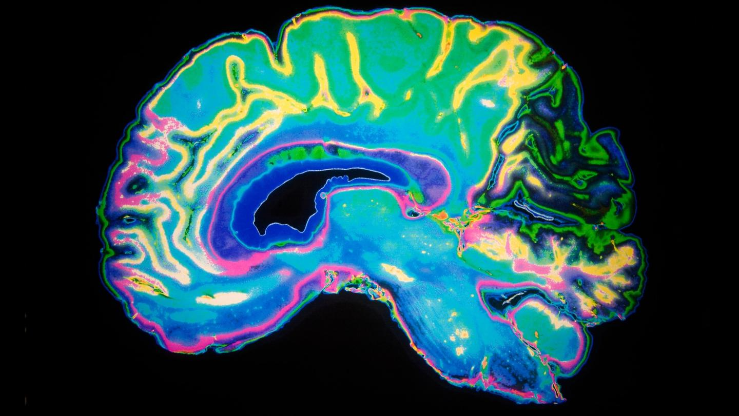 Salk Institute scientists have identified how a promising Alzheimer's drug works on the molecular level