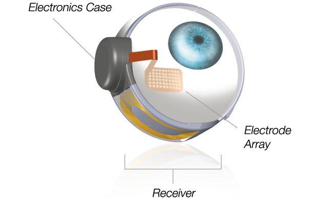The basic components of the Argus II Retinal Prosthesis, used in the experiment