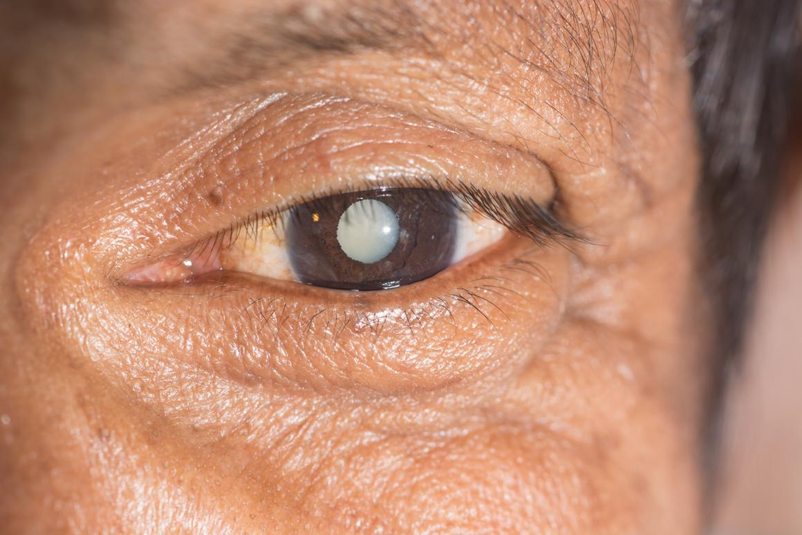 Research suggests that treating cataracts by way of an eye drop mightn't be all that far away