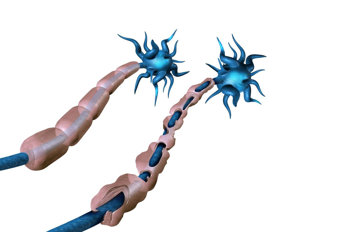 A new study has shown that transplanting certain brain cells can reverse the damage caused by multiple sclerosis