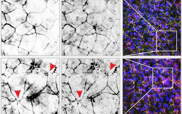 하단 프레임에서는 상단 프레임의 건강한 세포와 비교하여 전자 담배 화학 물질에 노출 된 후 장 내벽의 파열 세포 접합을 볼 수 있습니다.